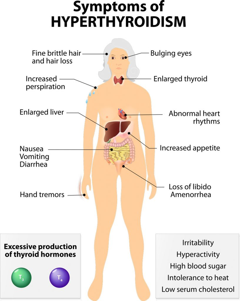 Thyroid disease called hyperthyroidism or overactive thyroid produces excess thyroxin hormone