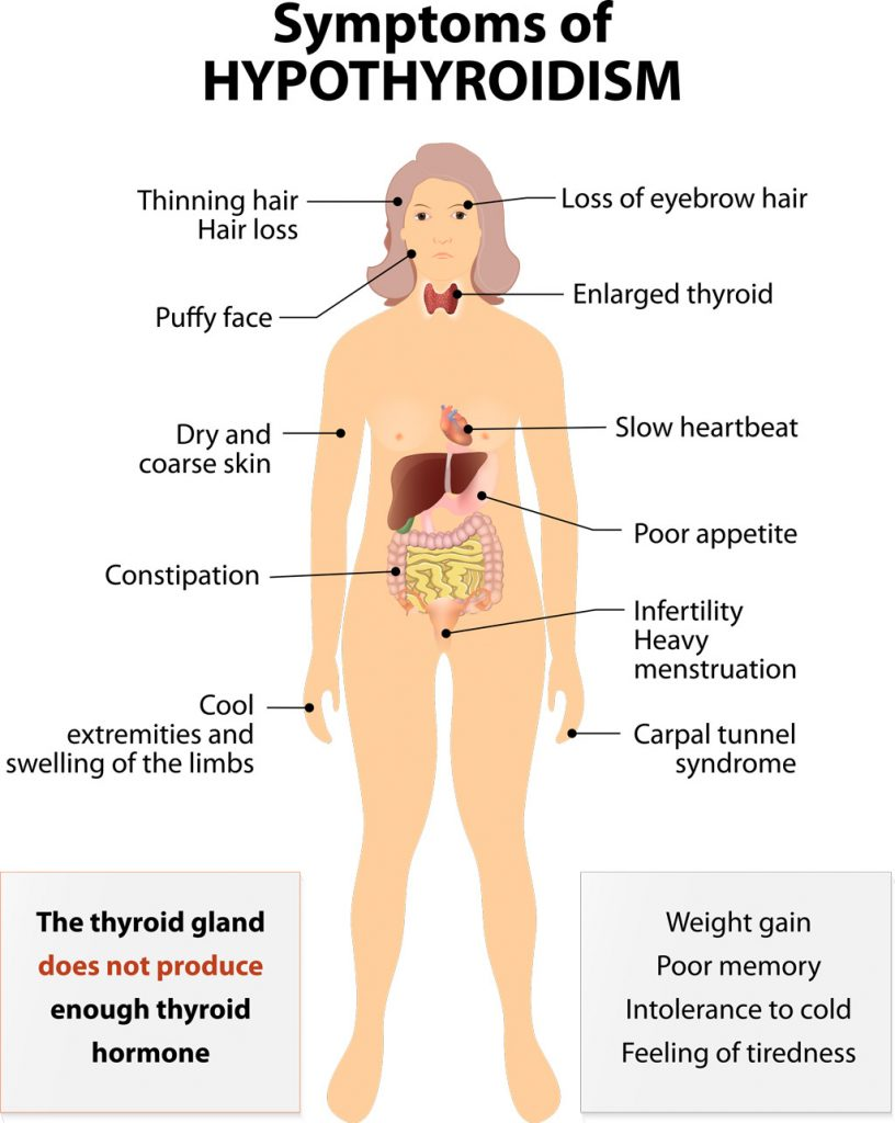 Thyroid disease of Hypothyroidism is an underactive thyroid gland